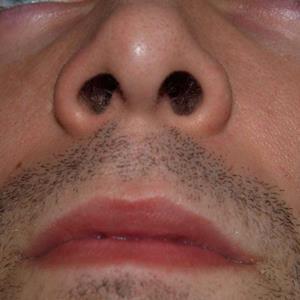 Close Up Pics Level Level 32 Pic 6 Answer